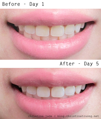 Crest 3D White Brilliance Toothpaste Boost Polish Treatment Review Before After Teeth Whitening