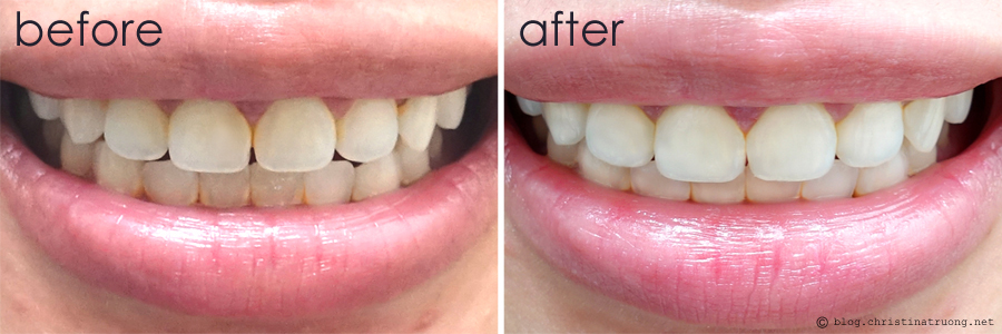 Crest 3d White Whitestrips With Light Christina Truong