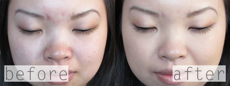 Dermablend Professional Smooth Liquid Camo Medium Coverage Foundation Camel 30N Before and After Review