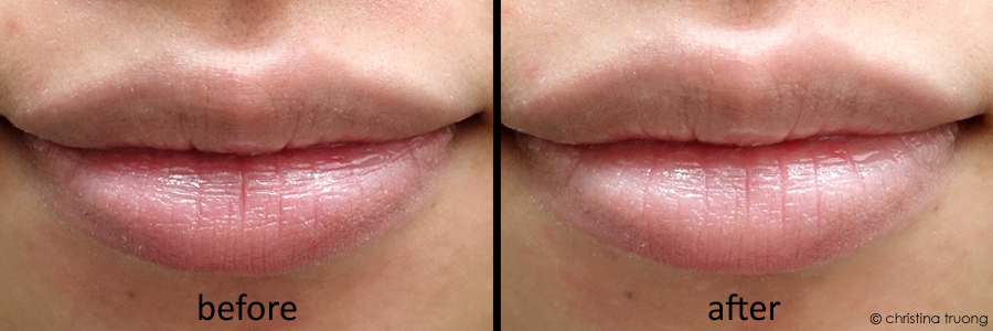 Farleyco Beauty Lips By Modele Plump Collagen Lip Treatment Review Before After